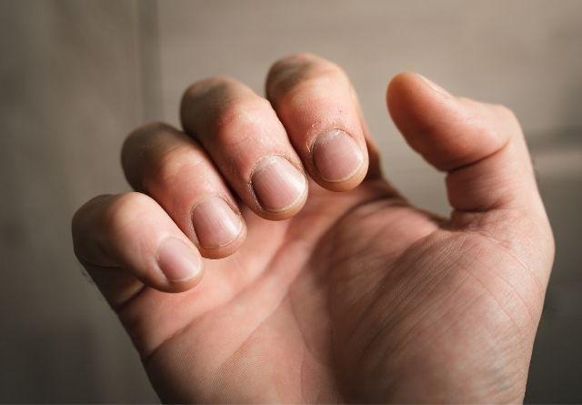 el cuidado de uñas quebradizas requiere especial atención