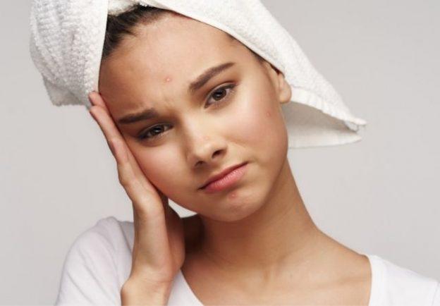 Los adultos también pueden padecer acné