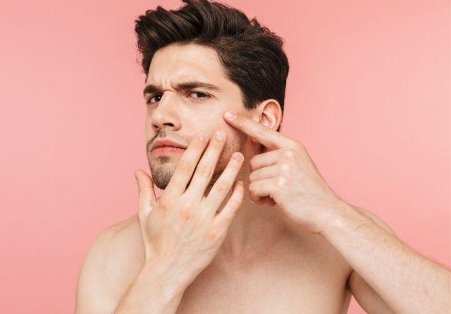No se debe tocar las zonas afectadas por acné