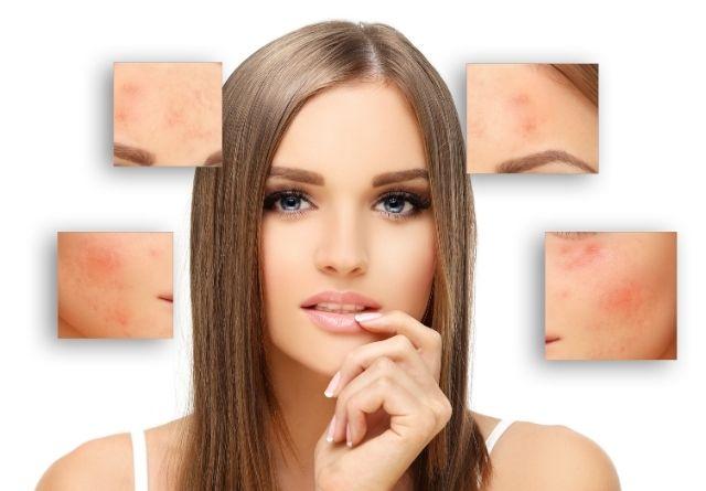 En algunas personas se desconoce las causas del acné