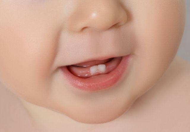 La dentición infantil comienza entre los 6 y los 10 meses